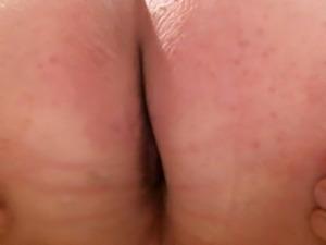 olibrius71 anal prolaps